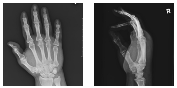 5th Mt Dislocation Xray Premier Radiology Services All png images can be used for. 5th mt dislocation xray premier